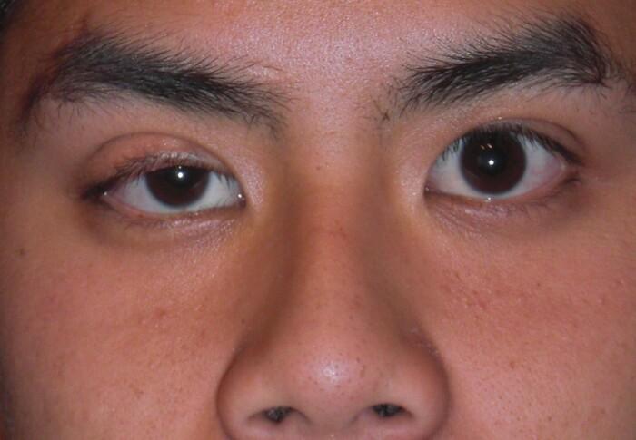 Hangende oogleden (ptosis)